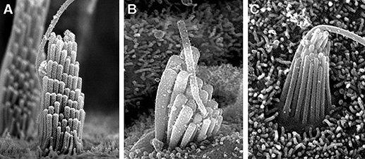 células ciliadas oirnatur